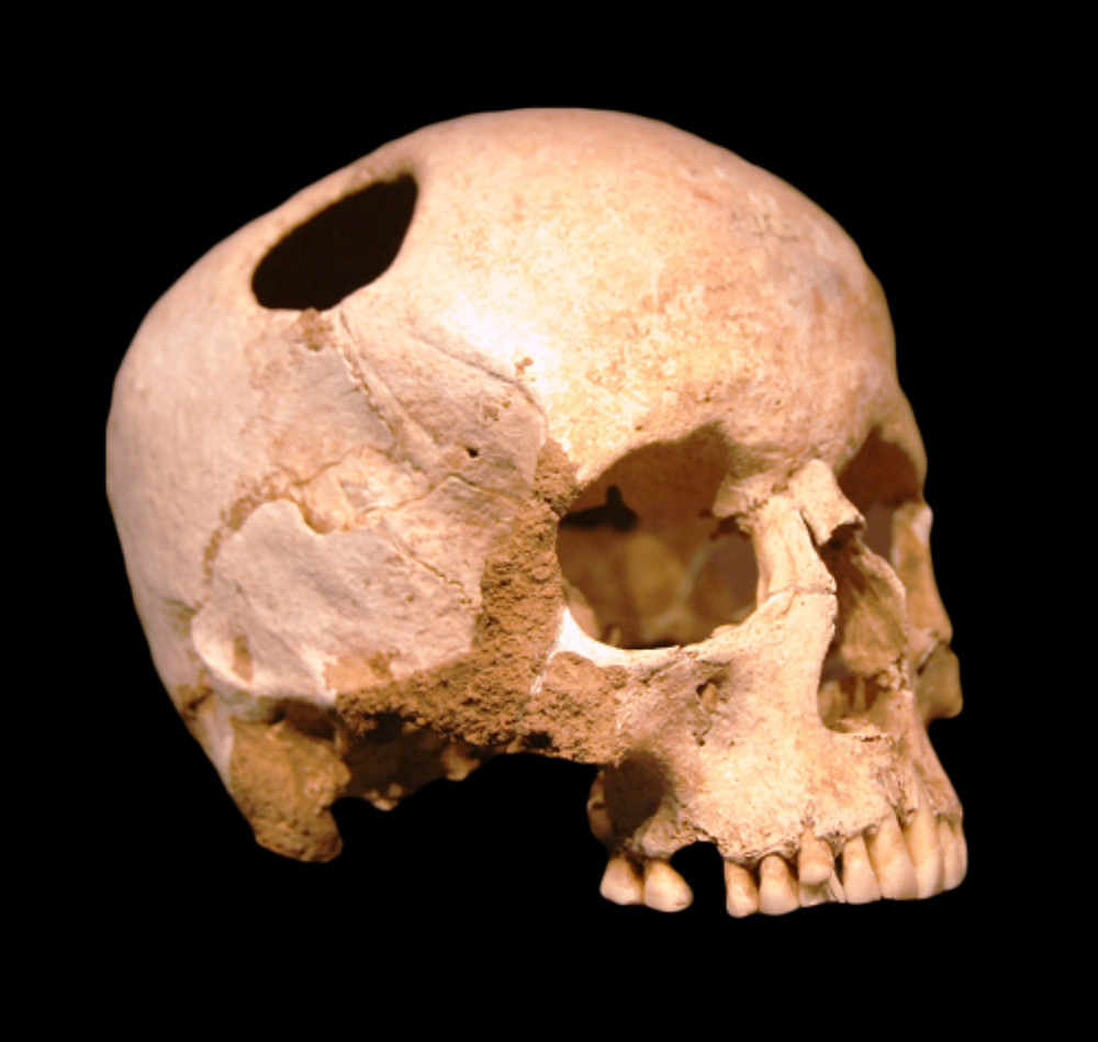 Courtesy of Wikipedia. Neolithic girl's skull. The perimeter of the hole in the skull is rounded off by ingrowth of new bony tissue, indicating that the patient survived the operation.