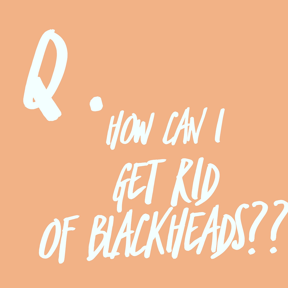 How can I get rid of blackheads