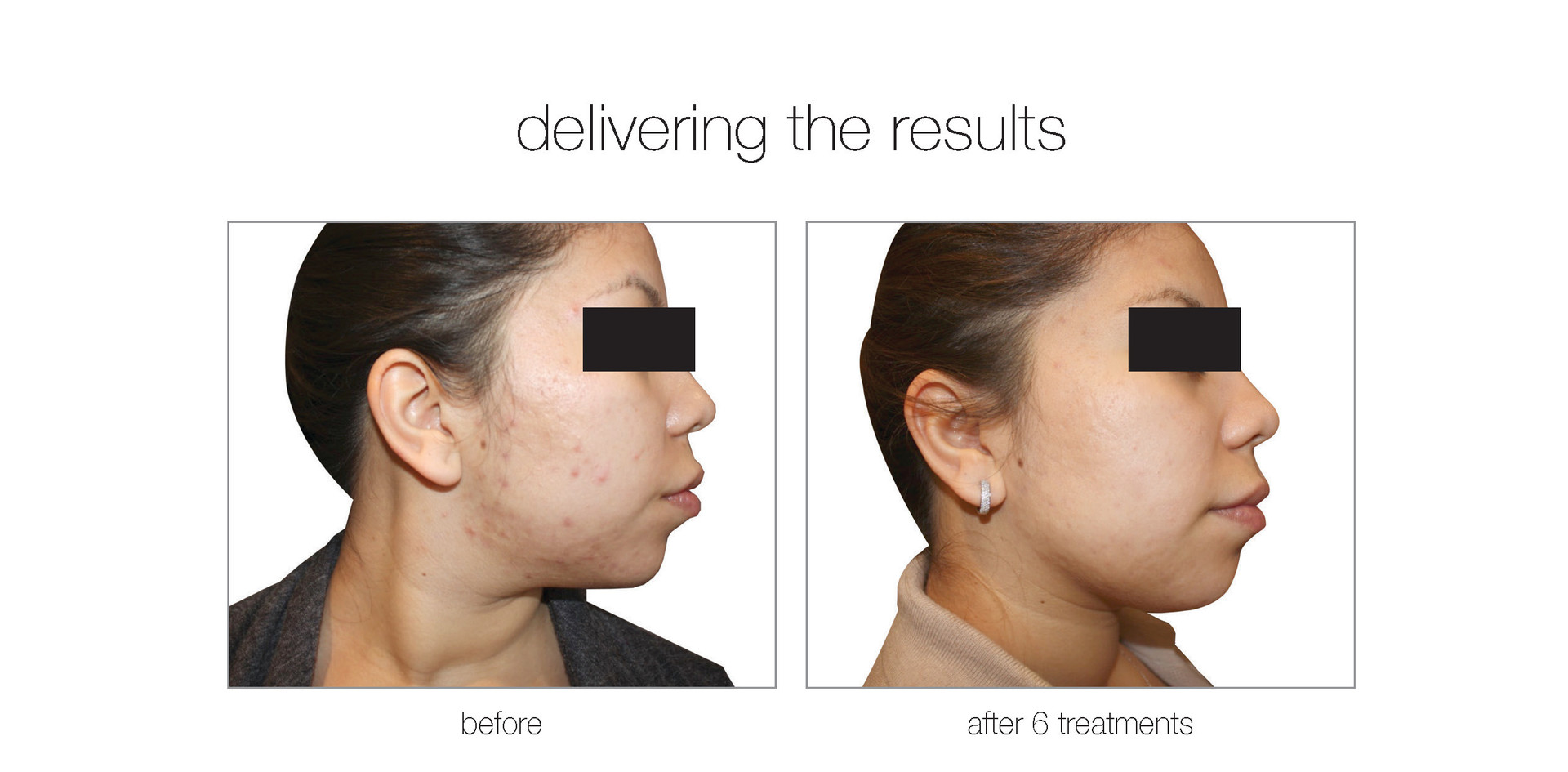 Acne Reduction