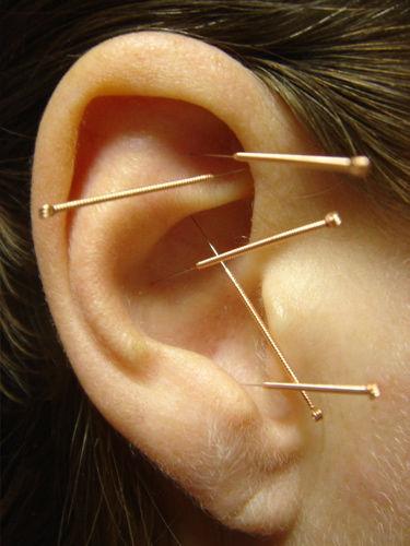 Acupuncture mini treatment