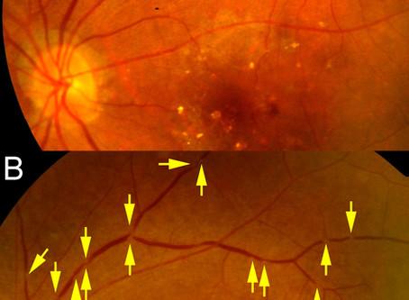黄斑外来の論文がActa Ophthalmologicaにpublishされました