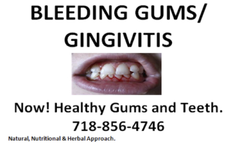 Bleeding-Gums-Gingivitis