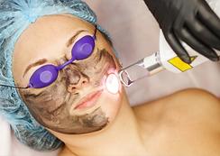 Carbon_Facial_Treatment.png