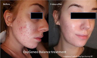 before-and-after-oxygeneo-3.jpg
