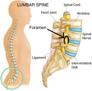 Spinal Stenosis Low Back Pain