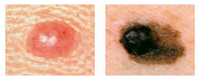 melanoma asymmetry