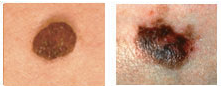 skin cancer check for colour