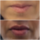 lips1.png