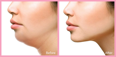 Liposuction of Neck & Jaw