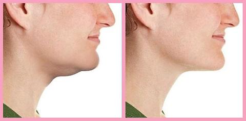 Liposuction of Neck & Jaw
