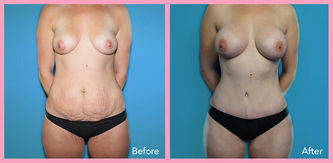 Mommy Makeover A Mommy makeover may include: ·      Breast Augmentation. ·      Breast Lift. ·      Breast Reduction. ·      Tummy Tuck. ·      Circumferential Abdominoplasty. ·      Liposuction.