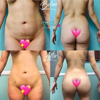 Brazilian Butt Lift (BBL) / Liposuction with Fat Transfer