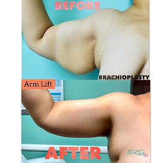 Arm Lift / Brachioplasty