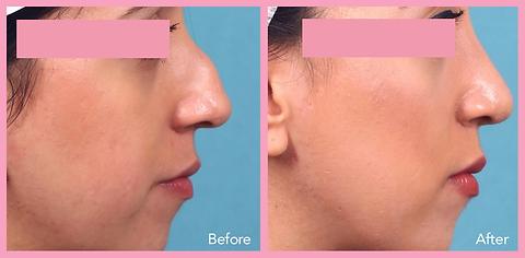Nose Surgery / Rhinoplasty