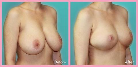 Reduction of mammoplasty