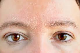 Dehydrated Skin Verses Dry Skin
