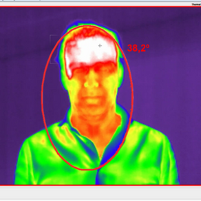 Thermal cameras for temperature readings.