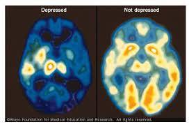 Depresia: Ako ju rozpoznať, čo robiť a nerobiť, ako jej predchádzať a liečiť ju