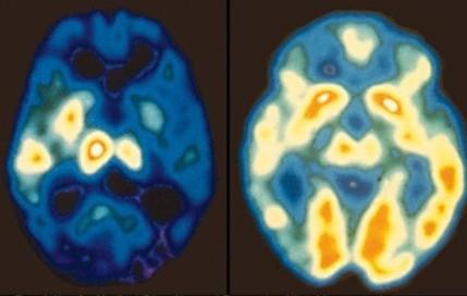 Depresia - mozog človeka ktorý trpí depresiou (ľavá strana) a ktorý netrpí (pravá strana)