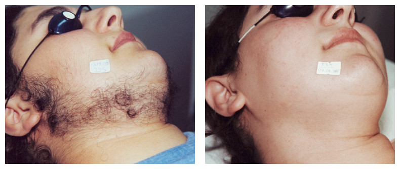 Laser Hair Removal 6.jpg