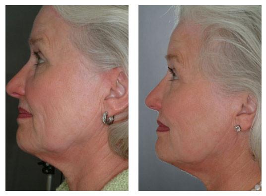 Wrinkle Reduction 2.jpg