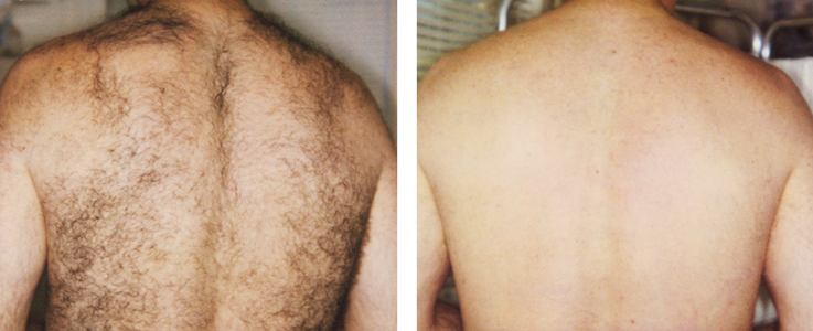 Laser Hair Removal 2.png
