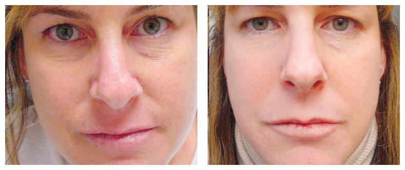 Wrinkle Reduction.jpg