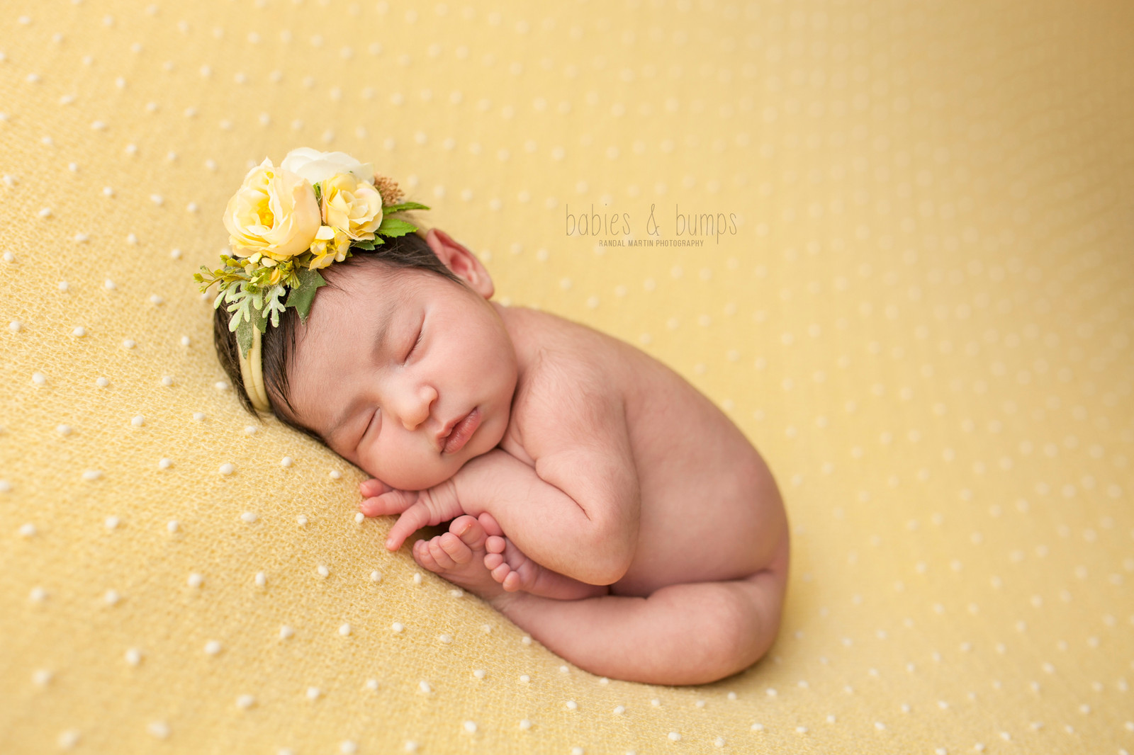 yellow bumps on newborn skin