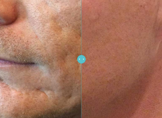 Bellafill, Fillers, and Botox