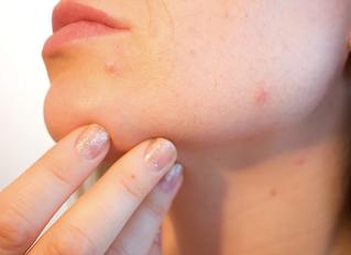 7 Surprising Habits that Worsen Acne