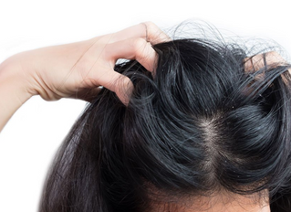 21 Reasons for Your Itchy Scalp