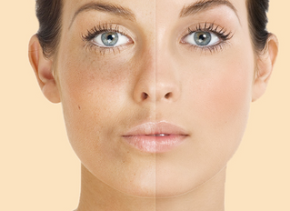 Treating Skin Discoloration