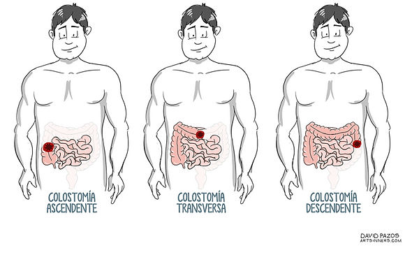 tipos colostomia