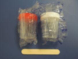 calprotectina fecal