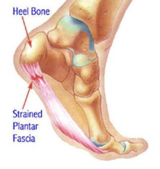 pain in the heel