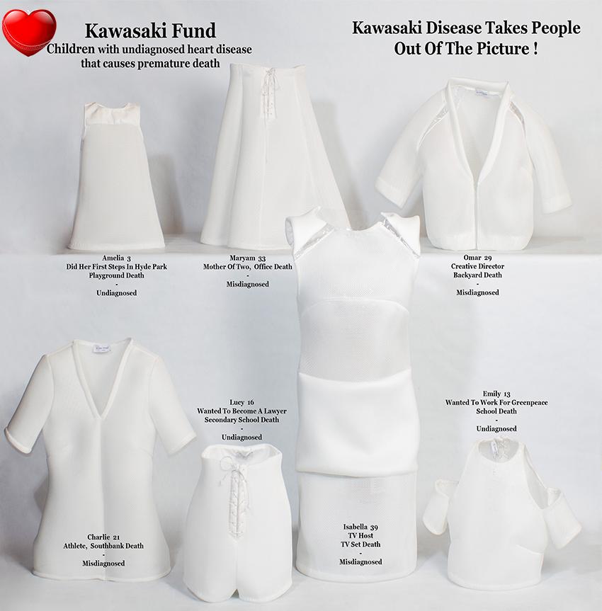 Kawasaki Disease in adults