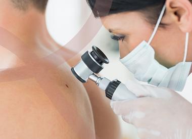 dermatoscopia dermatologista são paulo