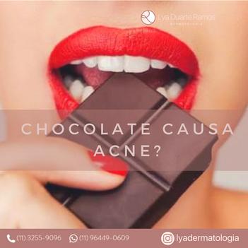 Chocolate causa acne?