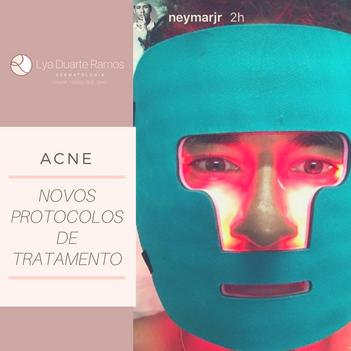 Acne - Novos protocolos de tratamento