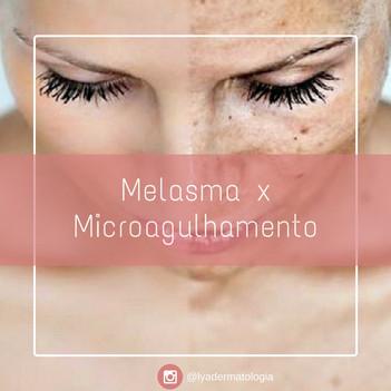 Melasma e Microagulhamento