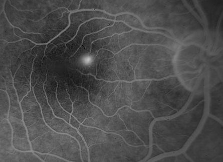 retinopatia surowicza