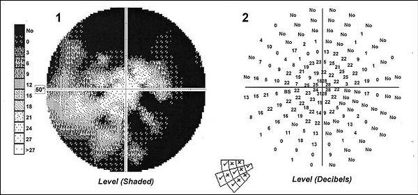 perymetria badanie pola widzenia