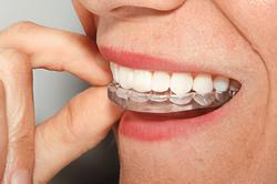 Tandenknarsen, Knarsplaatjes