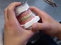 Kunstgebit tandarts Amsterdam Zuid