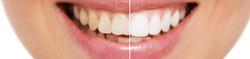 tanden bleken teeth whiteningAmsterdam