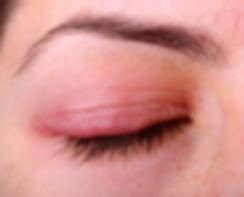 blepharitis image.PNG
