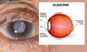 eye-disease-glaucoma.jpg