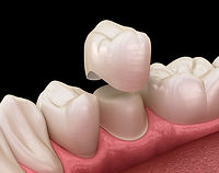Dental-Crowns-in-Plymouth-Devon.jpg