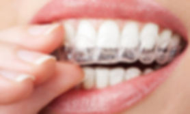 Teeth whitening kits, oak dental care, teeth whitening, dentist, dental surgery, Ormskirk, Southport, litherland, maghull