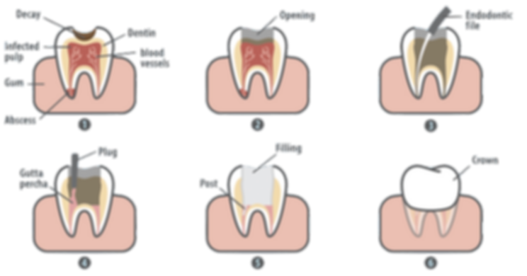 Root Canal Treatment - Dentist